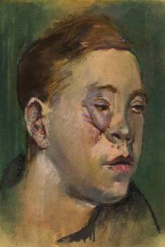 National Portrait Gallery, Soldier with Facial Wounds, Henry Tonks, 1916-1918