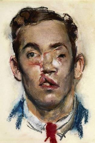National Portrait Gallery - Soldier with Facial Wounds, Henry Tonks, 1918